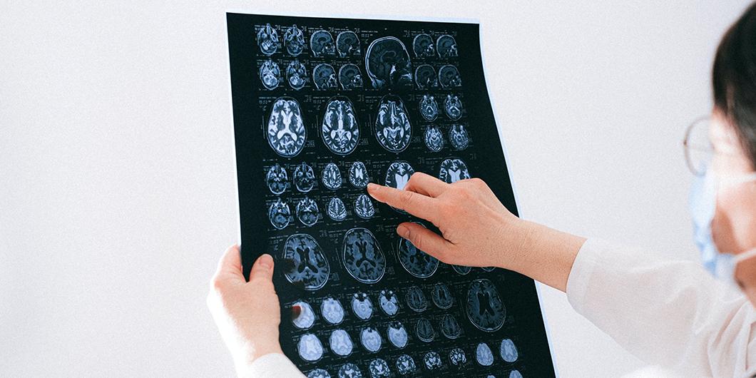Cum afectează COVID-19 creierul?